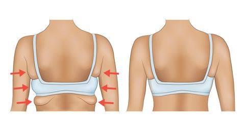 瘦手臂运动:还能紧实副乳、后背肉